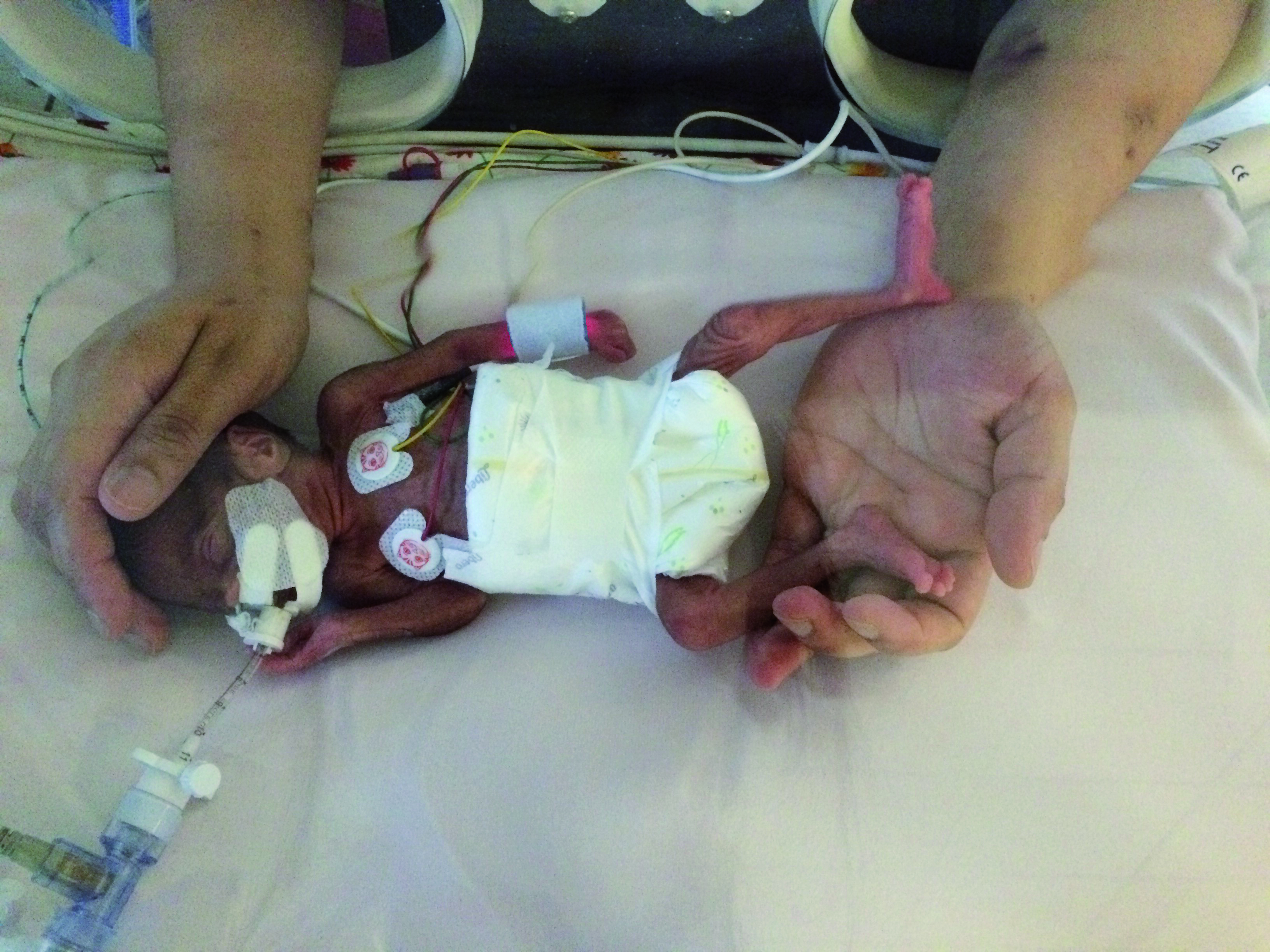 Born at 24 weeks, Hafsa weighed just 1
